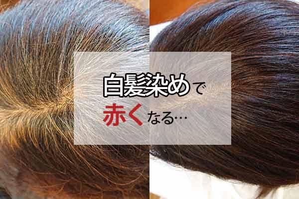 「白髪染めで赤くなる…」実は黒髪の量も関係しています
